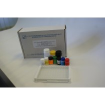 Тест-система иммуноферментная  для определения антител класса IgМ к вирусу гепатита А «ГЕПА-АТ-М» (96анализов)