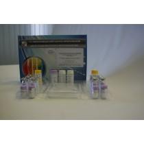 """Тест-система диагностическая для выявления антител класса М к энтеровирусам методом иммуноферментного анализа """"ЭВ-РекИФА-М"""""""